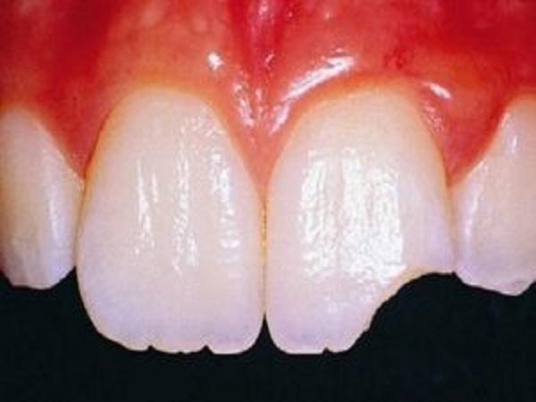 Mẻ răng có điềm gì?